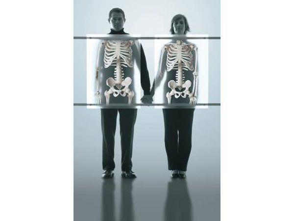 Osteoporose is `n toestand waarin die bene bros en geneig is tot fraktuur word